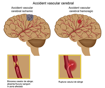 trigliceride normale