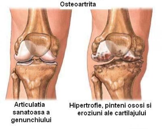 osteoartroza genunchiului care tratează articulație teribil de dureroasă