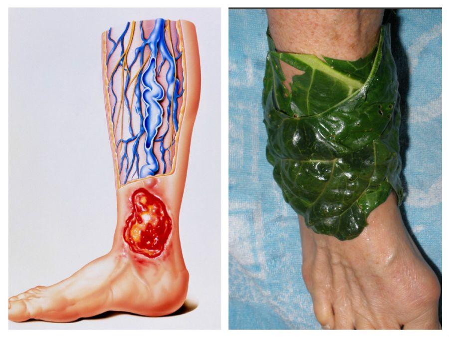 simptome sindromul picioarelor neliniștite vindecarea ulcerului gleznei